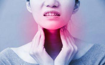 Viêm họng đỏ và biến chứng khôn lường